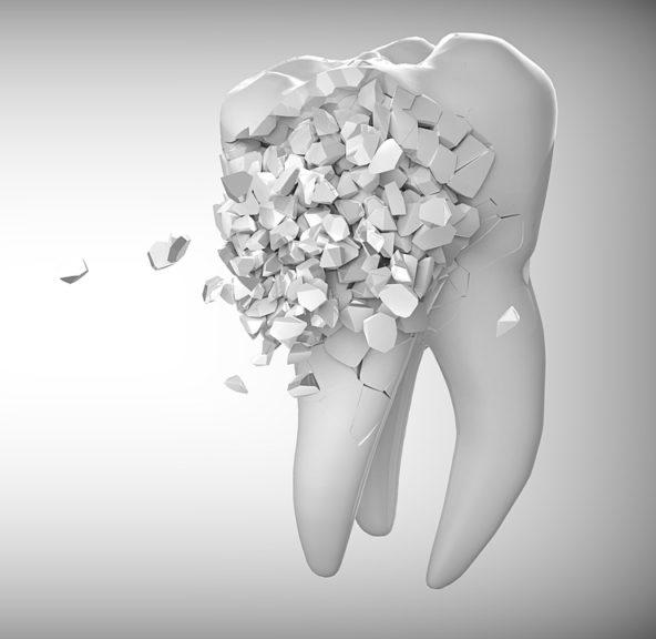 Τραυματικές βλάβες δοντιών